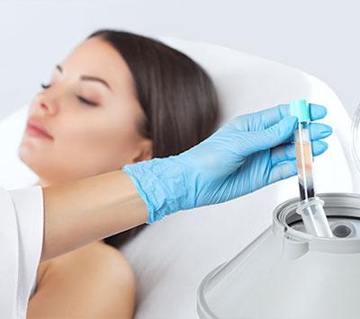 PRP Vampir-Lifting Behandlungsablauf 2