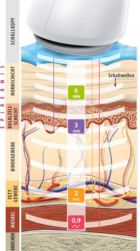 Wellen des Titankopfes