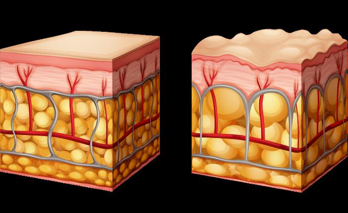 cellulite-ursache