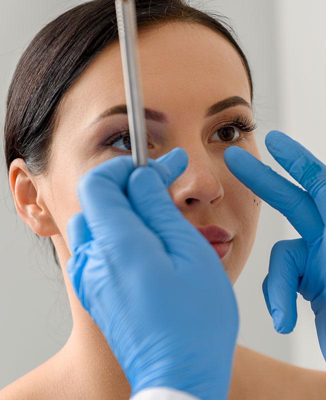 Nasenverschmälerung ohne OP