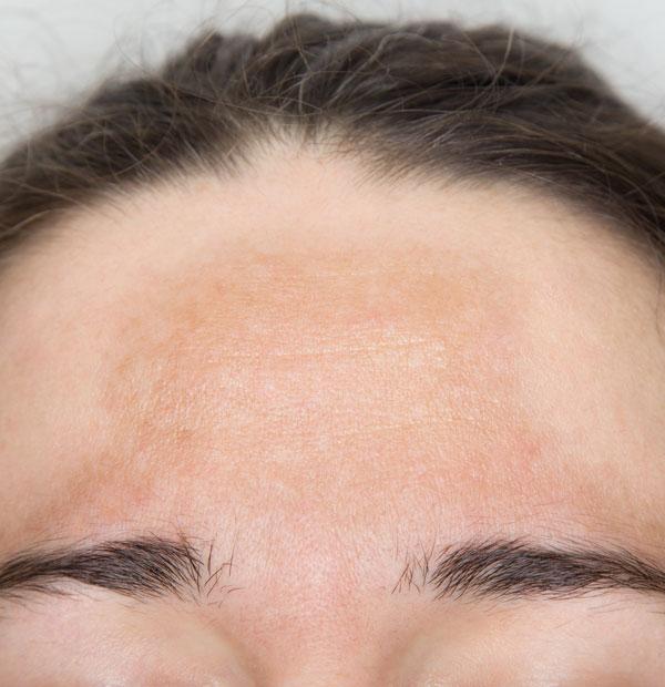 Hyperpigmentierung und Pigmentflecken Behandlung Definition
