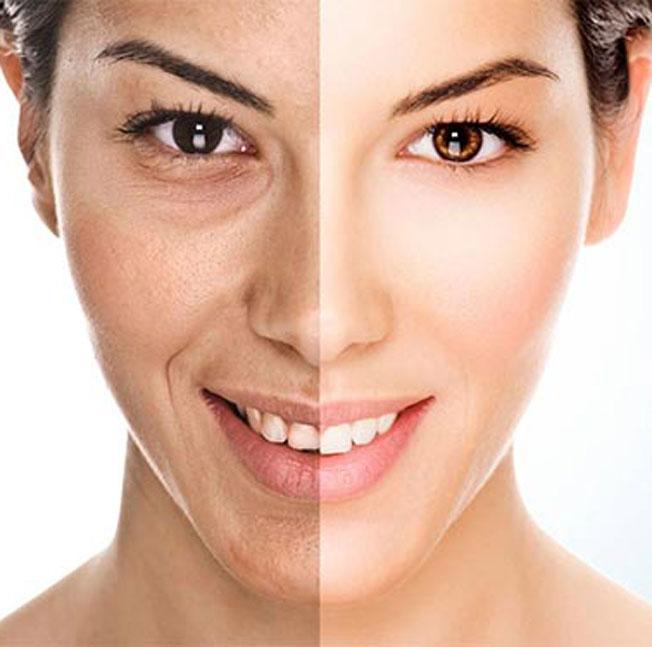 Hyperpigmentierung und Pigmentflecken Behandlung